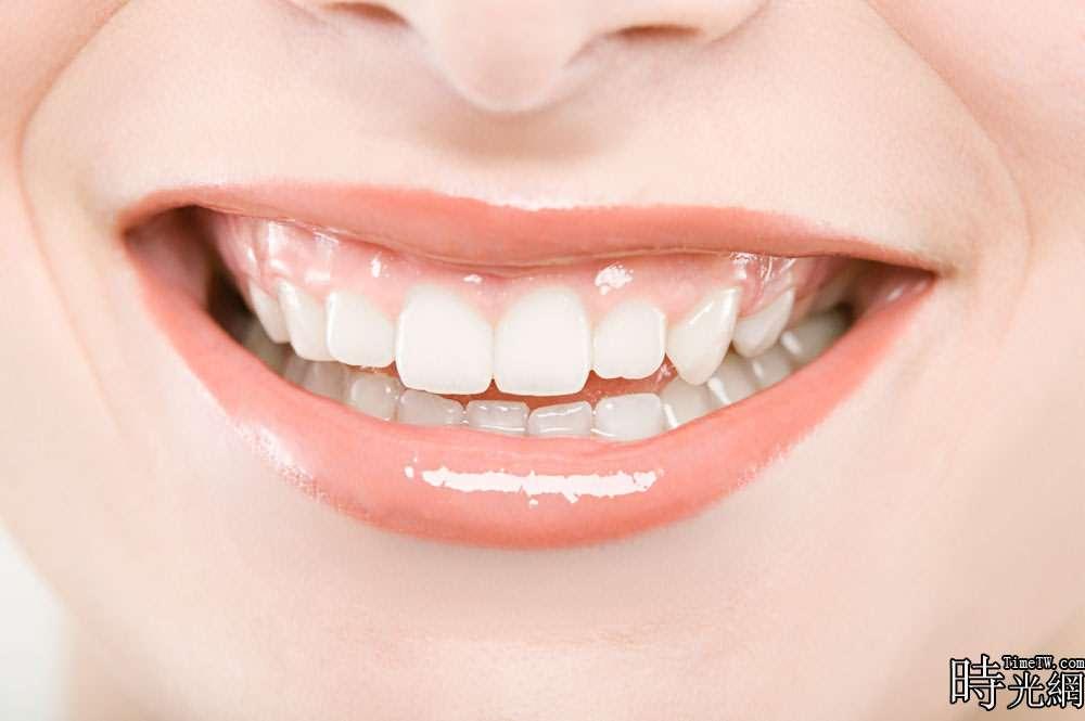 改善牙齒缺陷