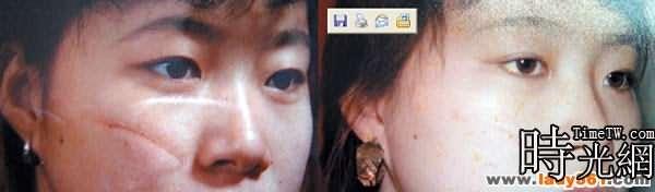超高頻皮膚整形美容術引領美容新趨勢