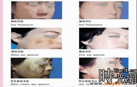 打造國際領先的超高頻整形美容術介紹